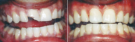 bonded_fillings1 What You Need to Know About Cosmetic Bonding