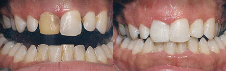 bonded_fillings2 What You Need to Know About Cosmetic Bonding