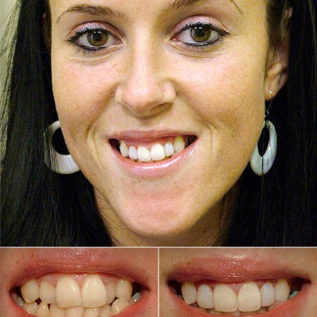 bonded_fillings3 What You Need to Know About Cosmetic Bonding