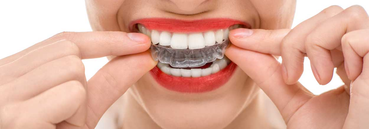 invisalign-simcoe-dental Making a Choice: Invisalign vs. Braces