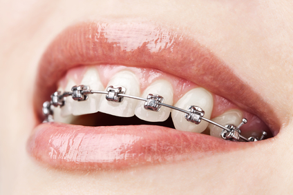 Hot-New-Trend-in-Adult-Orthodontic-Treatment3 How to Know if Invisalign is Right for You
