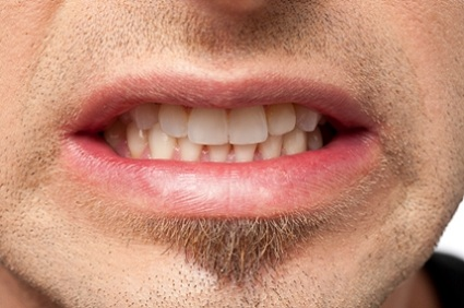 TMJ-Syndrome-grinding-the-teeth 10 Common Habits That Are Damaging Your Teeth