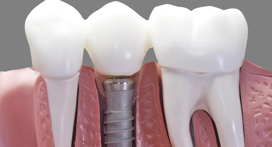 Dental-Implants How Osteoporosis Is Related to Dental Health