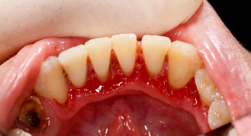 Periodontitis-and-Bone-Health How Osteoporosis Is Related to Dental Health