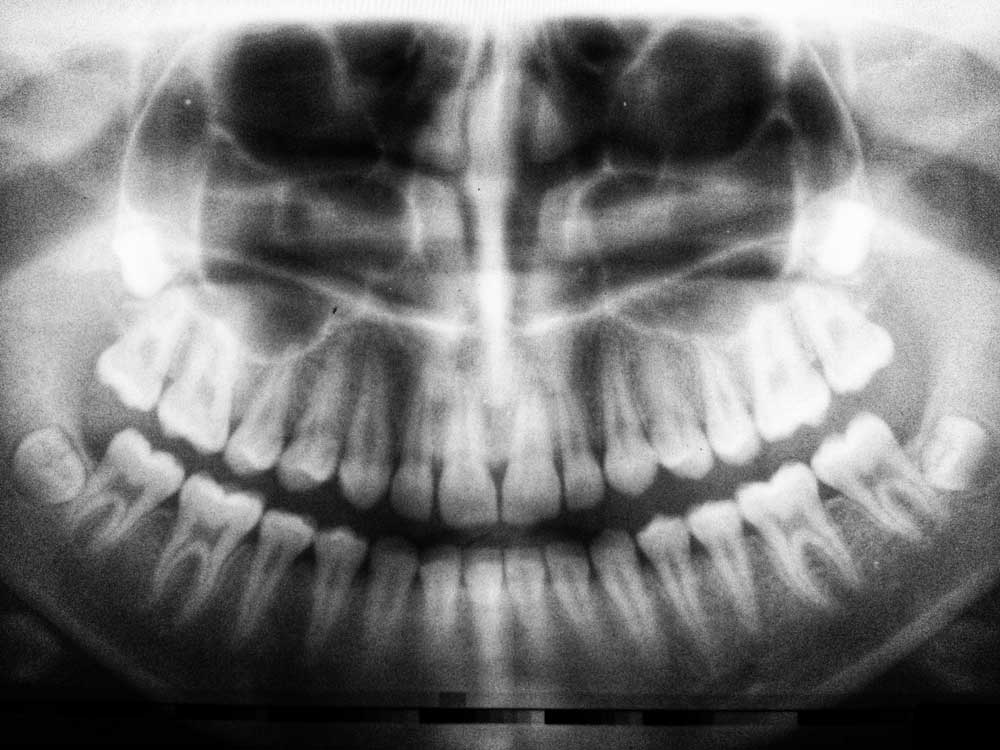 x-ray-film-simcoe-smile Why Are X-Rays Important?