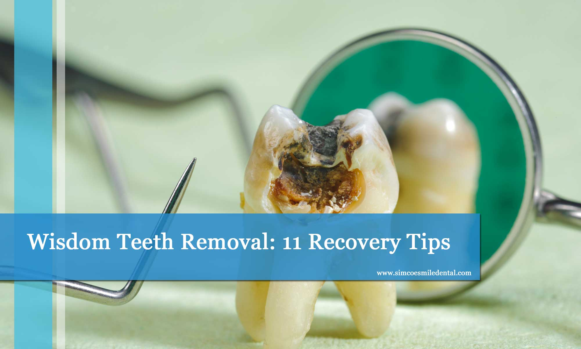 Wisdom Teeth Removal 11 Recovery Tips