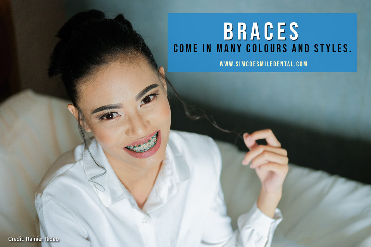 come-in-many-colours-and-styles How Do I Know If I Need Braces
