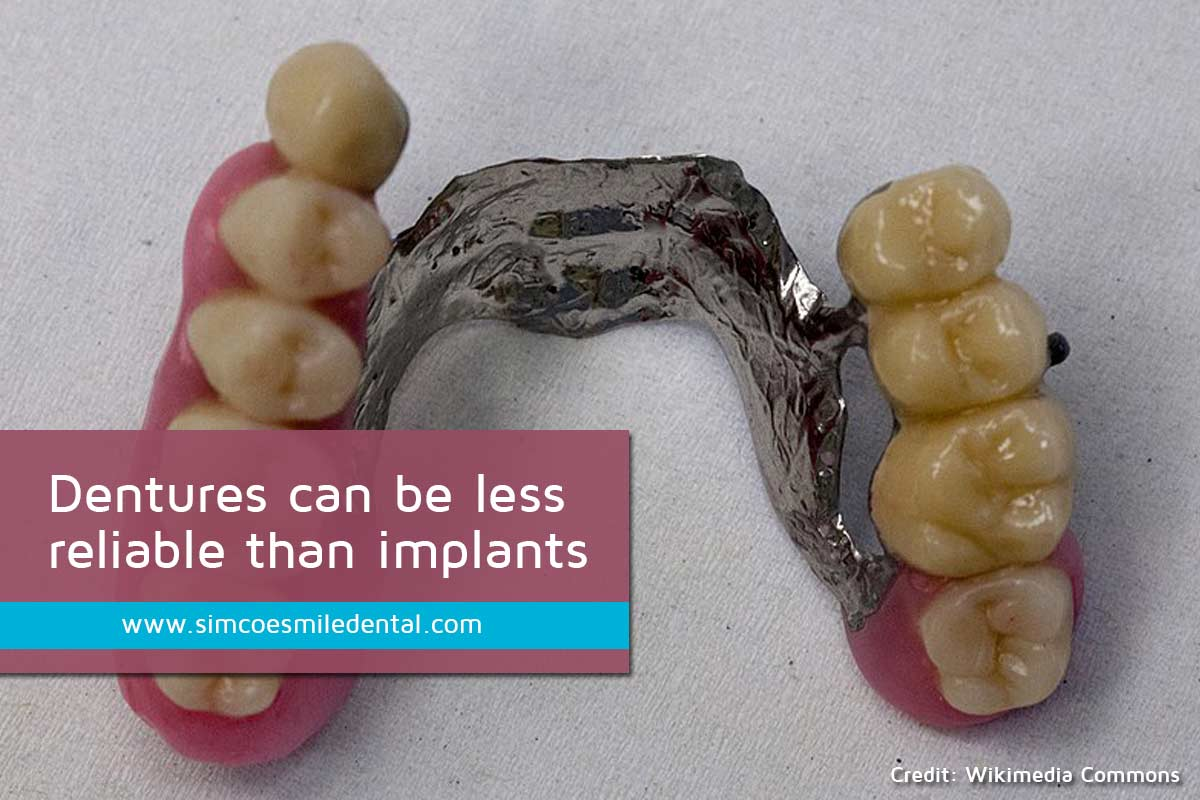 Dentures-can-be-less-reliable-than-implants Signs You May Need Dental Implants