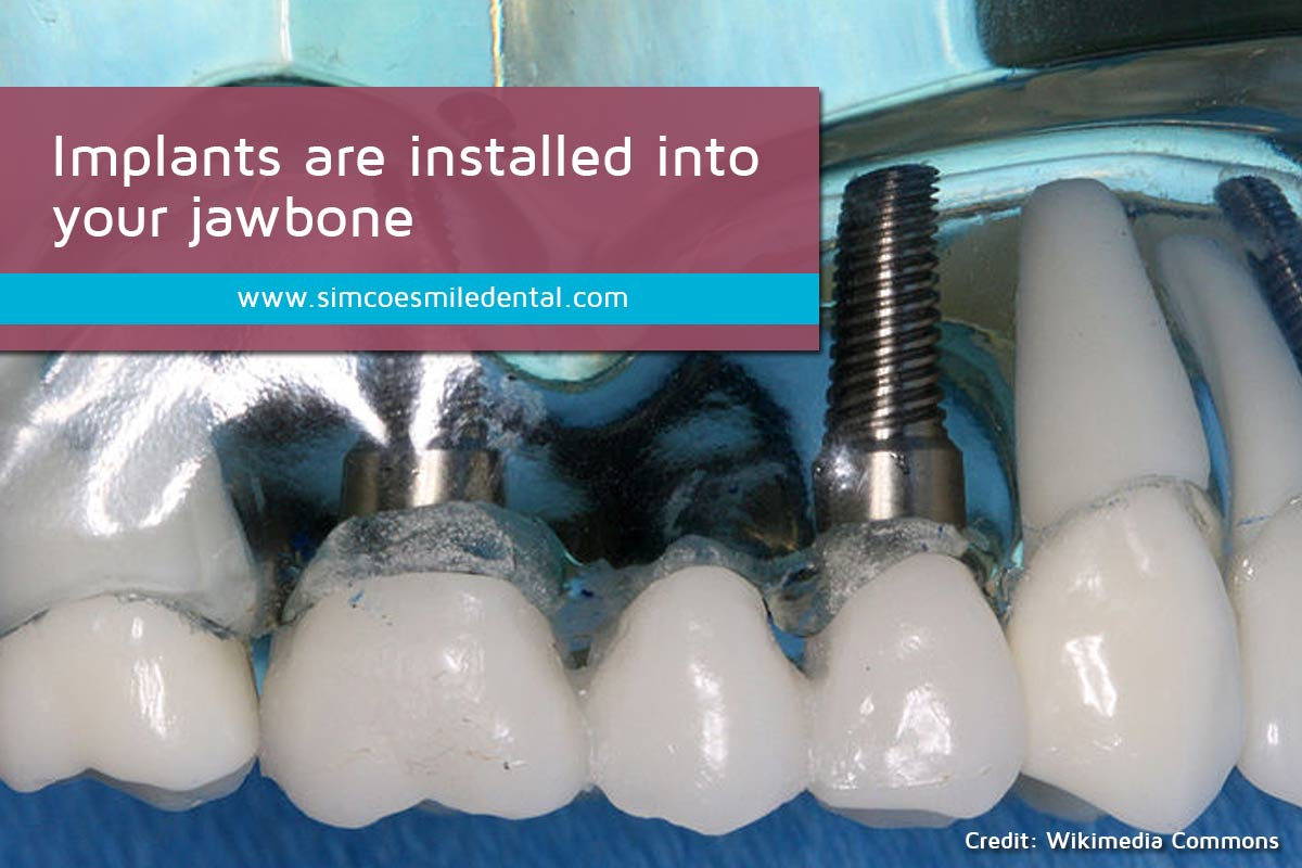 Implants-are-installed-into-your-jawbone Signs You May Need Dental Implants
