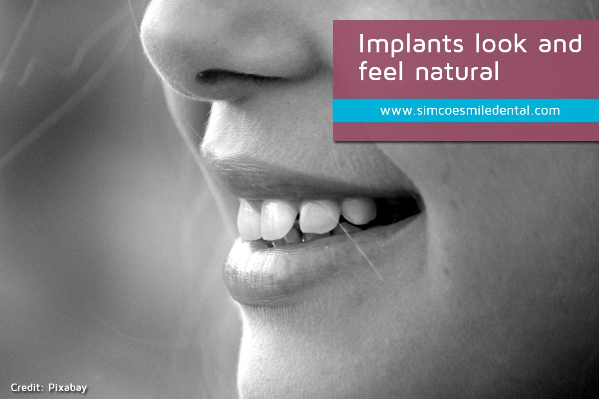 Implants-look-and-feel-natural Signs You May Need Dental Implants