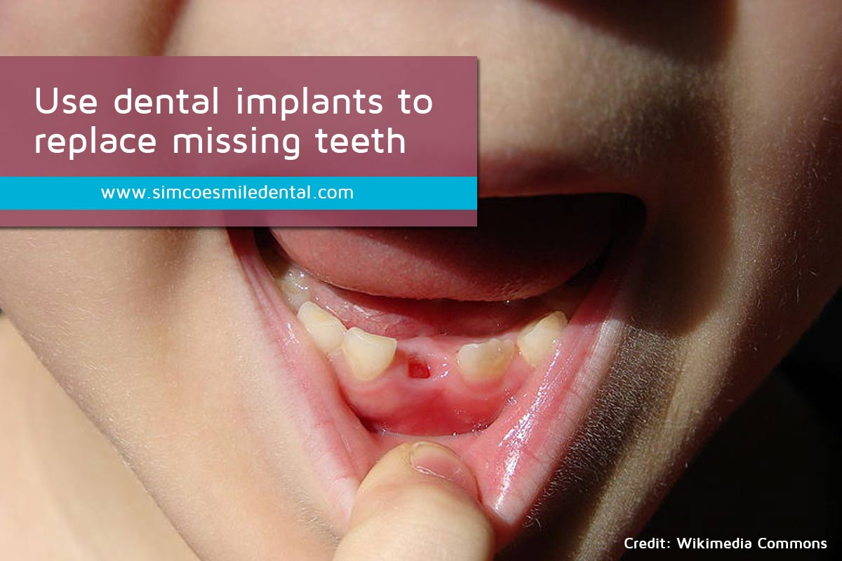Use-dental-implants-to-replace-missing-teeth Signs You May Need Dental Implants