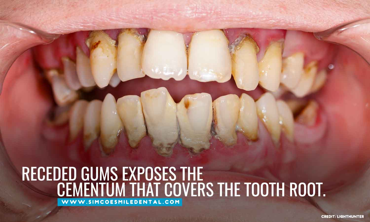 Receded-gums-exposes-the-cementum-that-covers-the-tooth-root Overbrushing And Its Effects On Your Teeth