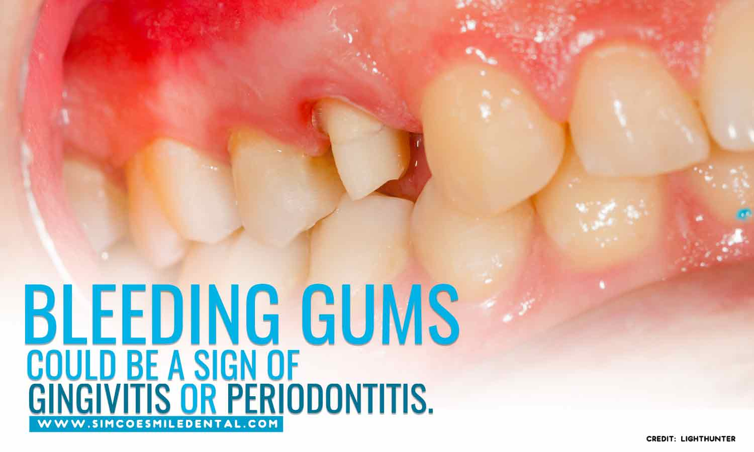 Bleeding-gums-could-be-a-sign-of-gingivitis-or-periodontitis Dental Problems You Should Never Ignore