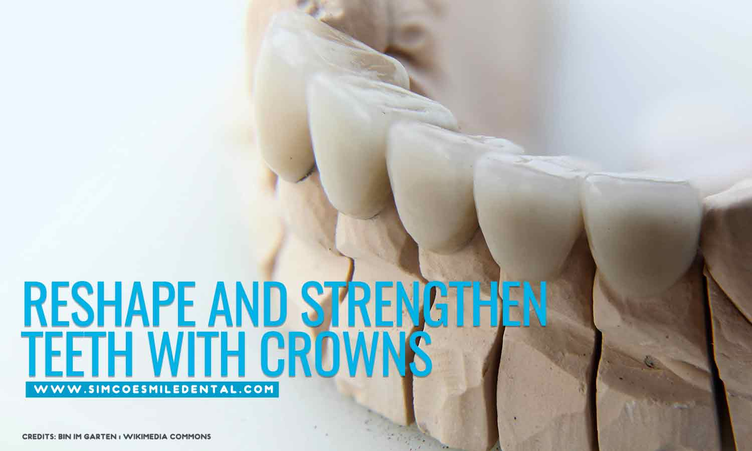 Reshape-and-strengthen-teeth-with-crowns Improve Your Smile with Cosmetic Dentistry