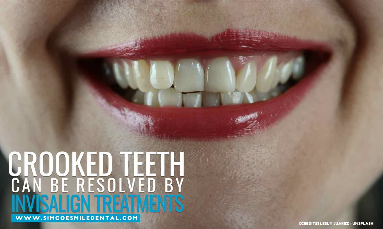 Crooked-teeth-can-be-resolved-by-Invisalign-treatments What to Expect From Invisalign Treatment
