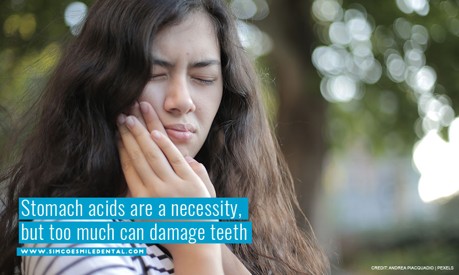 Stomach-acids-are-a-necessity-but-too-much-can-damage-teeth How Does GERD (Acid Reflux) Affect Your Teeth?