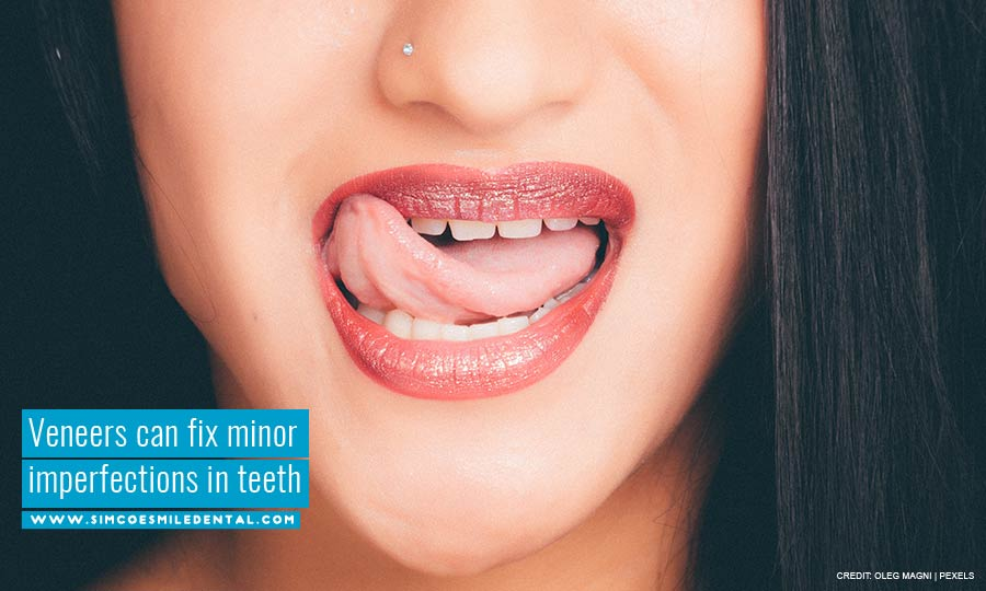 Veneers-can-fix-minor-imperfections-in-teeth Am I a Good Candidate for Veneers?