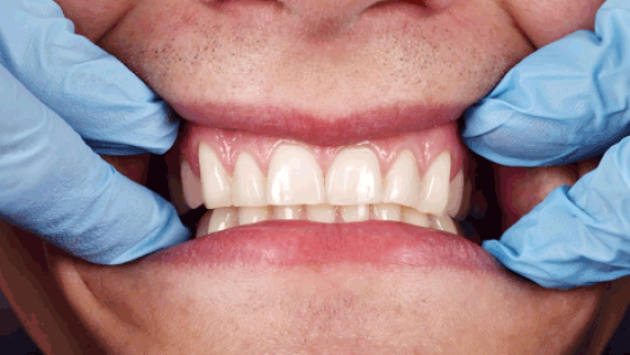 Common Myths About Oral Health