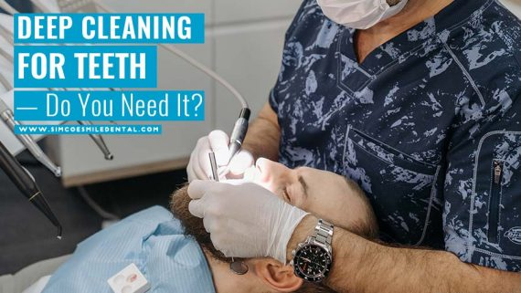 Deep Cleaning for Teeth — Do You Need It?