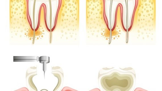 Three-Root-Canal-Myths-34za563ufub9pxx40ekgsg Teeth Grinding: Its Dangers and Treatment