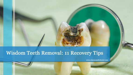 Wisdom Teeth Removal: 11 Recovery Tips